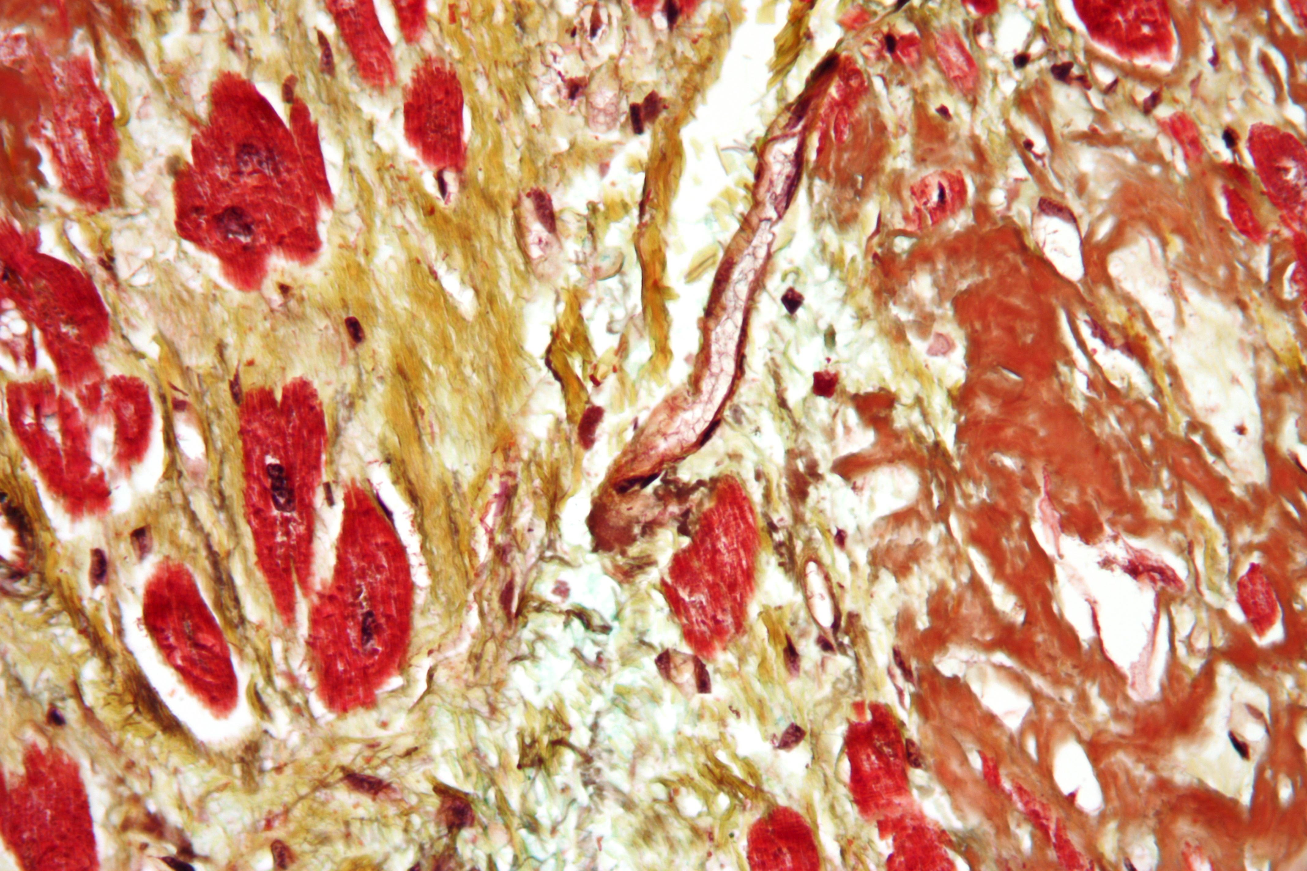 kardiovaskularna bolest je hipertenzija bilo hipertenzija može biti i do 25 godina