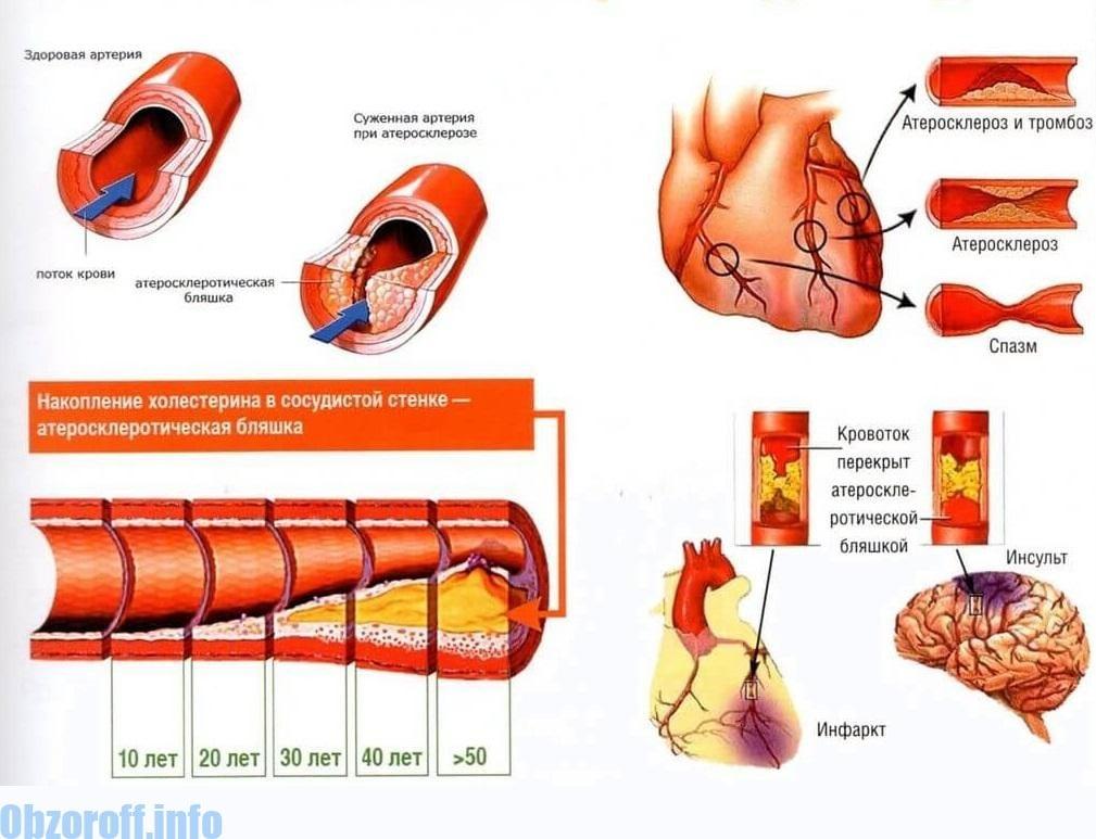 liječenje hipertenzije kod ateroskleroze hipertenzija oko 2 stupnja