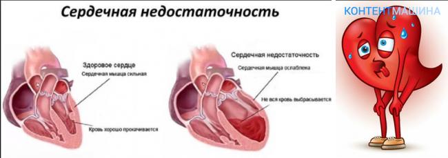 oskultacija hipertenzija ambulanta promatranje bolesnika s hipertenzijom