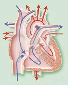 sklop od hipertenzije tablete dobar diuretik hipertenzija