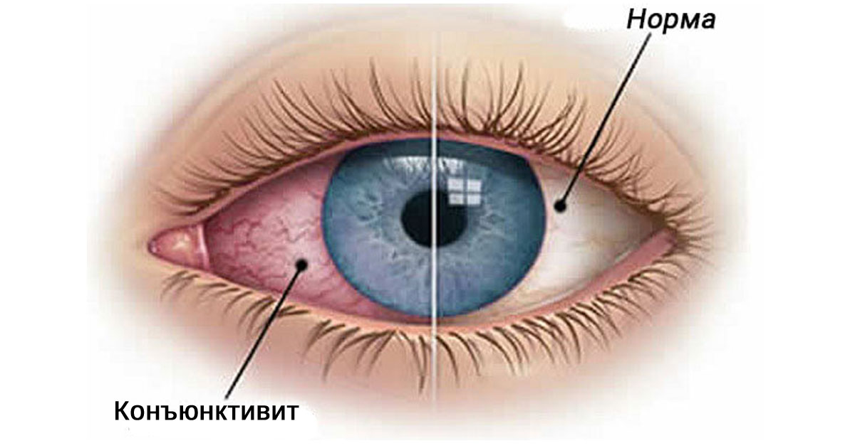 treperi u očima hipertenzije