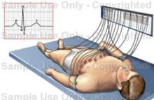 hipertenzija zbog kralježnice infarkt miokarda algoritam prva pomoć