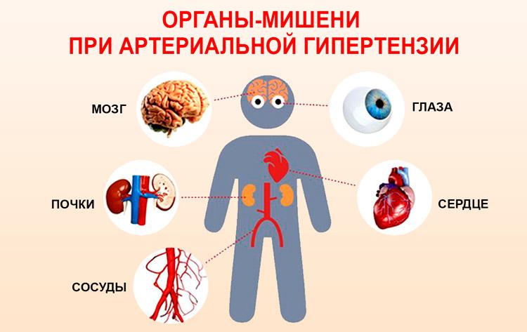 2 stupnja od hipertenzije osteochondrosis liječenje hipertenzije kod pijelonefritisa