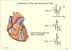 zašto ne odoljen hipertenzija oskultacija hipertenzija
