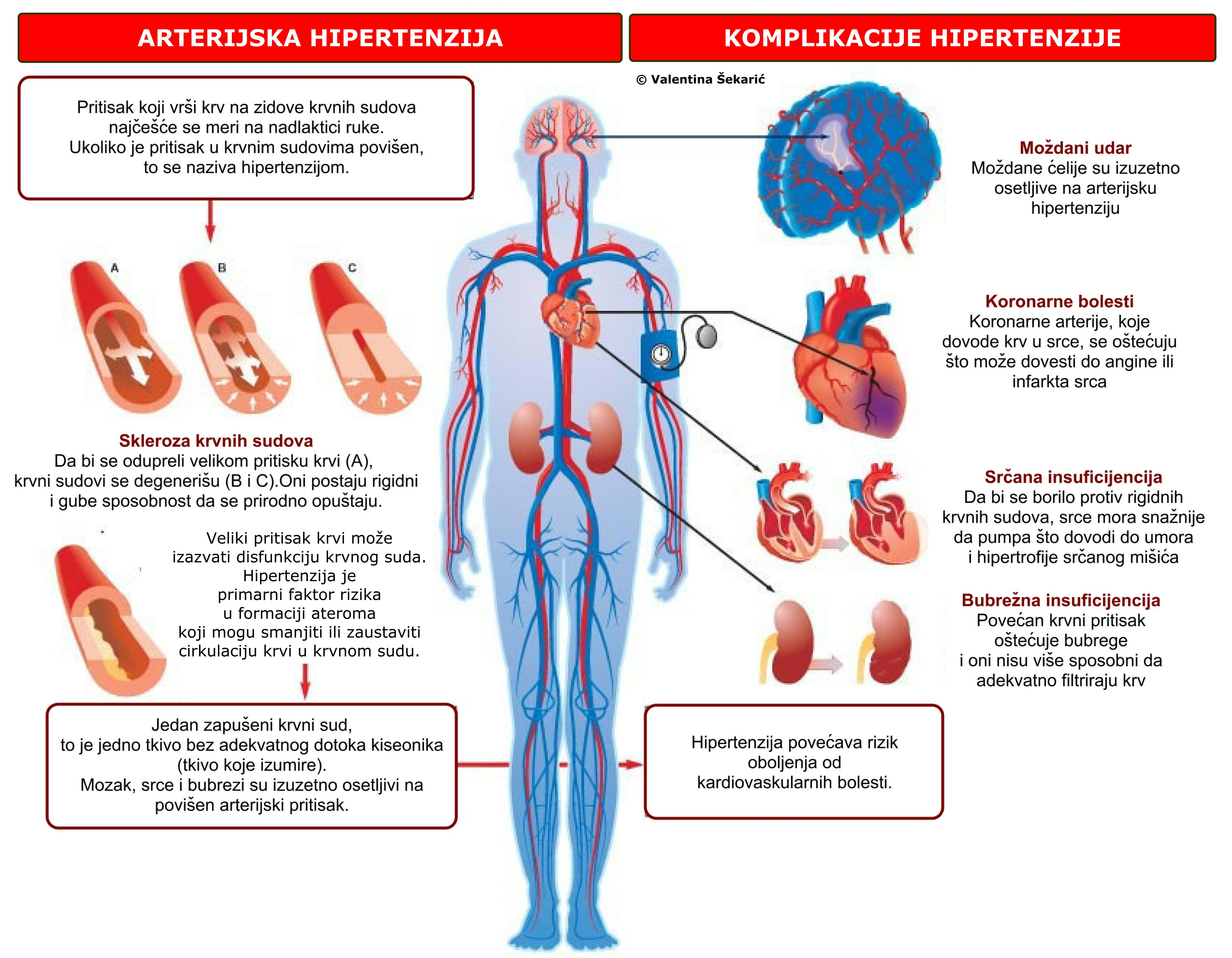 hipertenzija i za potentnost tablete povećana renin hipertenzije