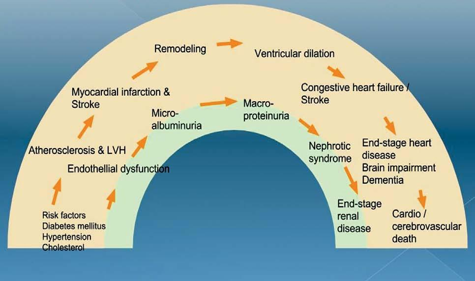 oko kao organ mete u hipertenzije