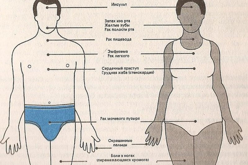 komissovanie za hipertenziju