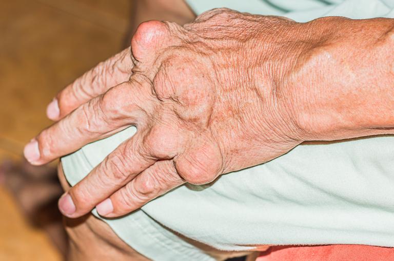 tablete za liječenje hipertenzije stupnja 2