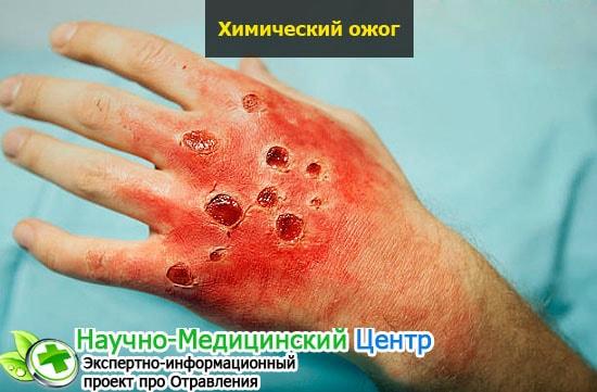 veroshpiron kapi hipertenzija suha usta i hipertenzija što učiniti