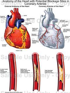 srčani lijevog ventrikula hipertenzija