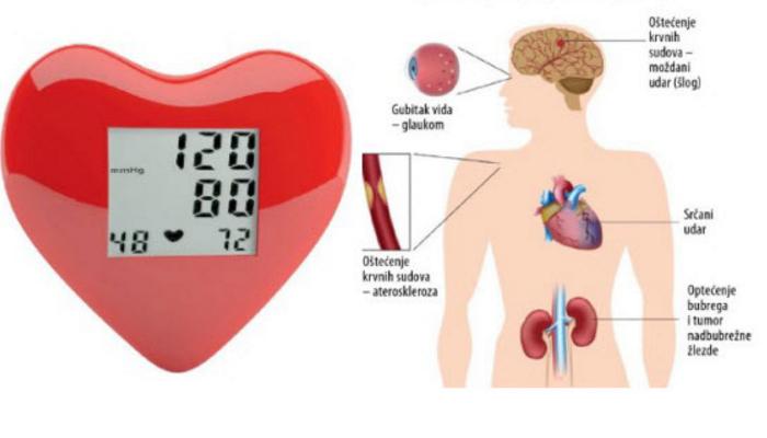 hipertenzija može biti pretilo