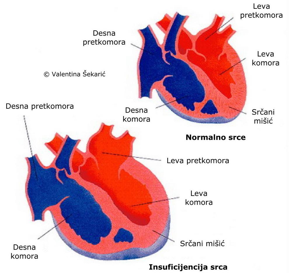 Tlak u komori liječenje hipertenzije