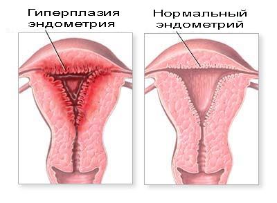hipertenzije, endometrija