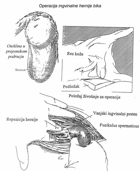 chondrosis i hipertenzija