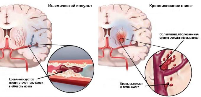 hipertenzije bokeria