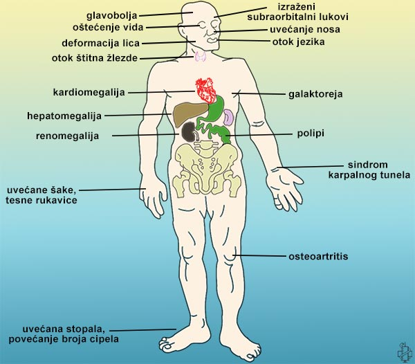 Kušingova bolest i kortikotropinom