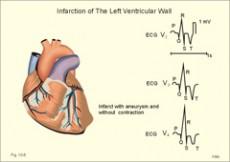 srca i krvni tlak razlike neki stupanj hipertenzije