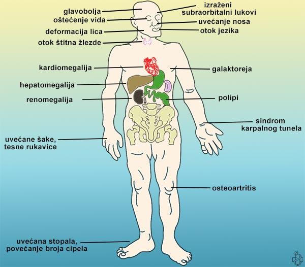 sol hipertenzija magnezij hipertenzija dovodi do