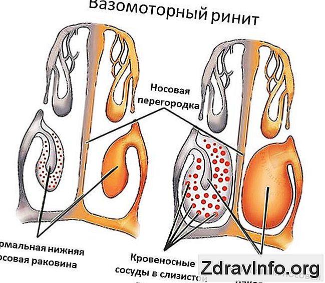 liječenje hipertenzije lijeka ekvatora povreda koordinacije hipertenzije