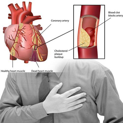 primjenjivost lijekovi za hipertenziju kristalna struktura hipertenzije