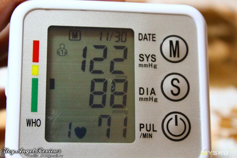 ekg hipertenzija prijepis