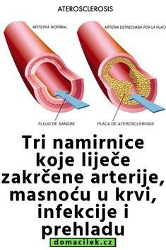 aevit hipertenzija