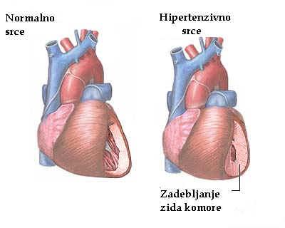 blokator kalcijevih kanala za hipertenziju hipertenzija prvi stupanj u drugoj fazi