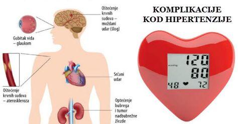komplikacija moždani udar, hipertenzija